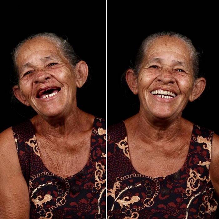 Бразильский стоматолог лечит зубы нуждающимся во всем мире