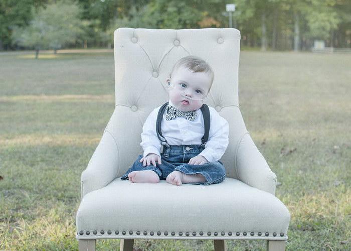 Фотосессия детей с синдромом Дауна