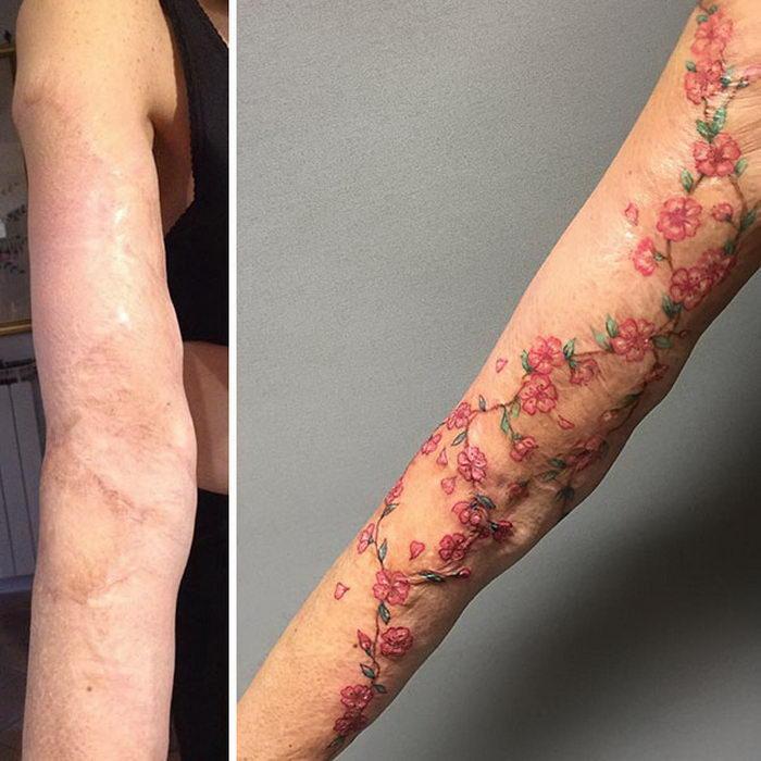 20 тату, закрывающих шрамы после операций