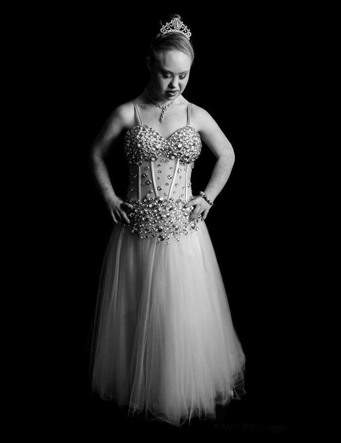 Мадлен Стюарт: первая модель с синдромом Дауна