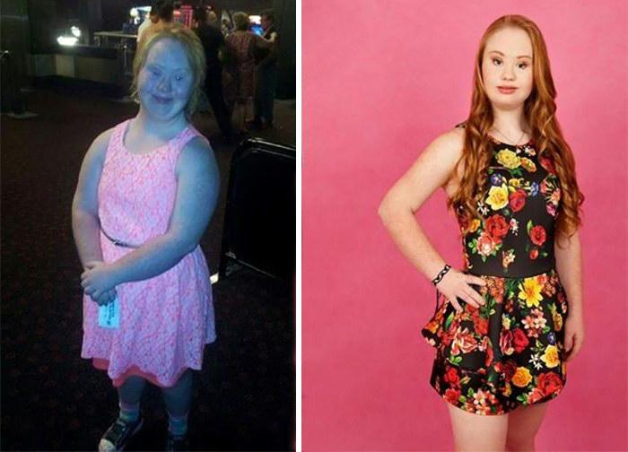 Удивительная девушка с синдромом Дауна
