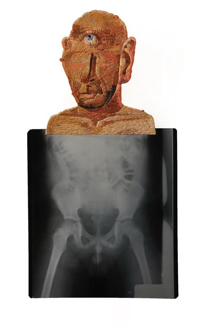 Вышивка на рентгеновских снимках: творения Matthew Cox