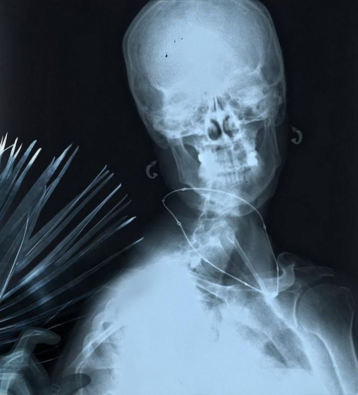 Рентгенные картины Benedetta Bonichi