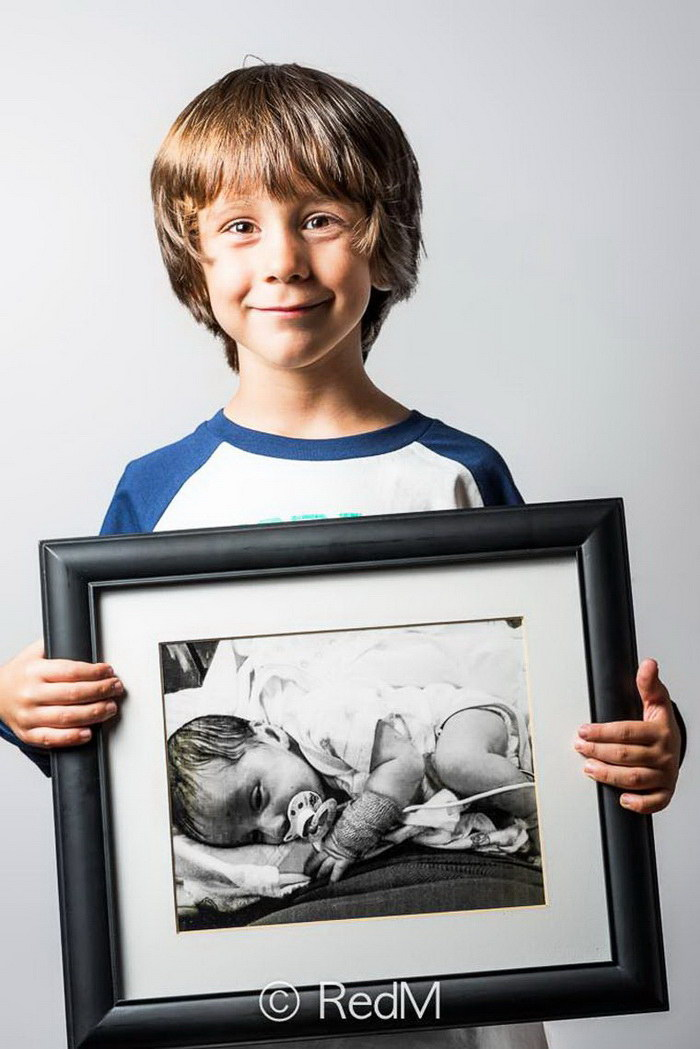 Малыши, рожденные раньше срока, в проекте Red M?thot