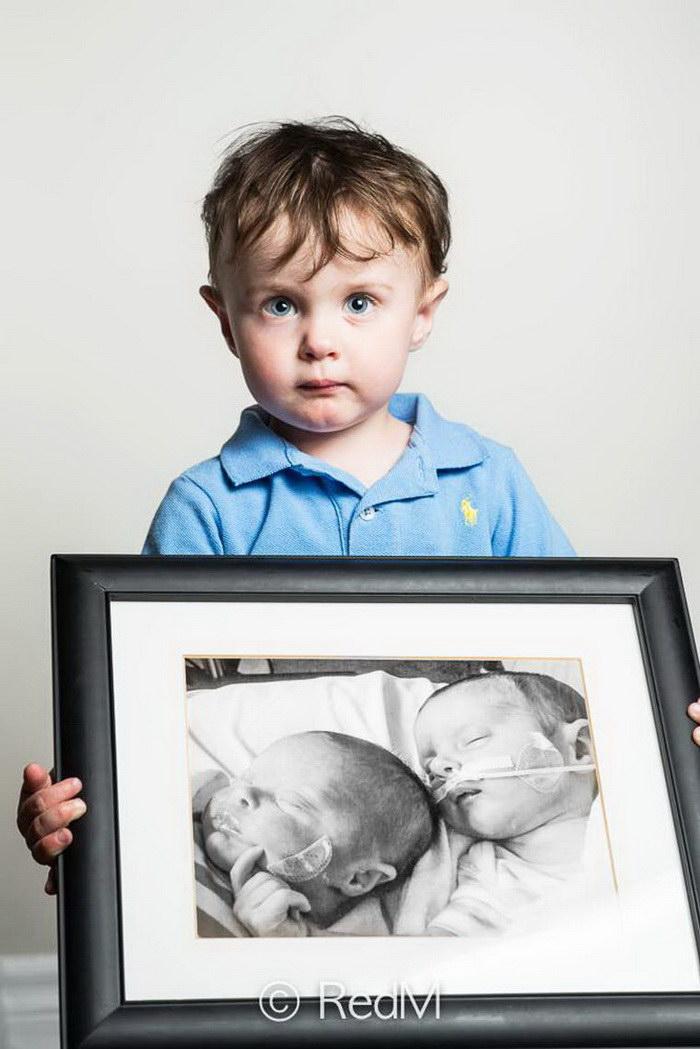 Малыши, рожденные раньше срока, в проекте Red Méthot