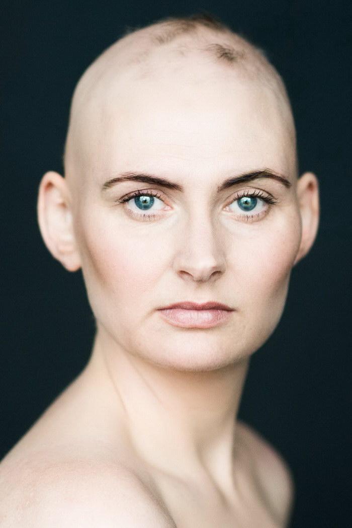 Лысые женщины в проекте Sigríður Frímannsdóttir
