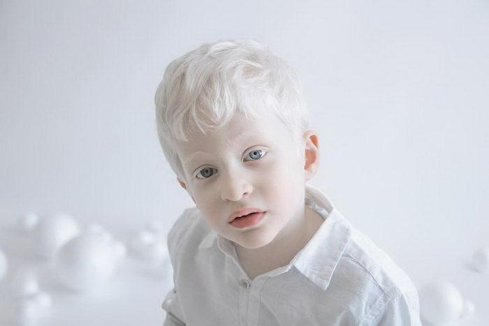 Красота альбиносов в фотографиях Yulia Taits